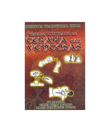 TRATADO ILUSTRADO DE TERAPIA CON VENTOSAS